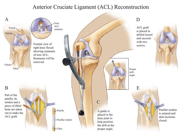 Anterior Cruciate Ligament Tear The Magpiestory Acl Tear And